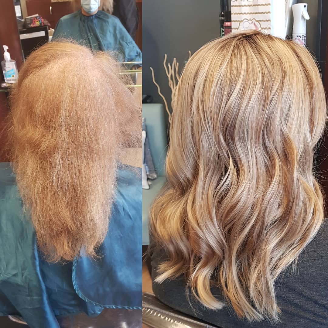 before and after of blonde after hair replacement