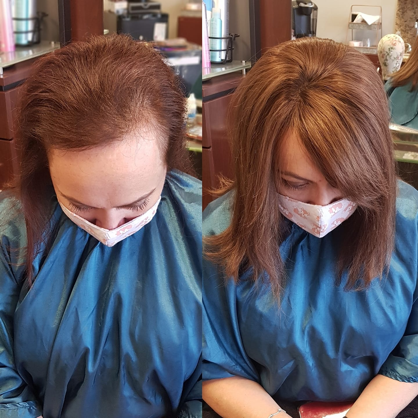 before and after of blonde after hair replacement transformation